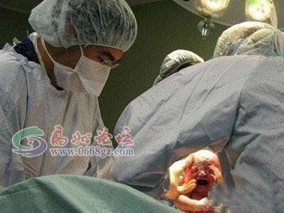 剖腹产宝宝从妈妈肚子里出来的瞬间
